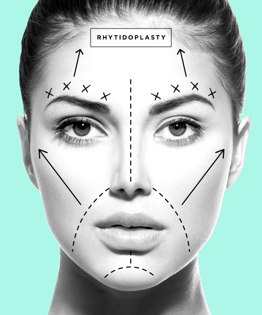 plastic surgery obsession essay Argumentative essay on plastic surgery an earlier article in this document explored the writing of argumentative essays the present article will rely on the guidelines provided earlier to present a sample argumentative essay on plastic surgery.