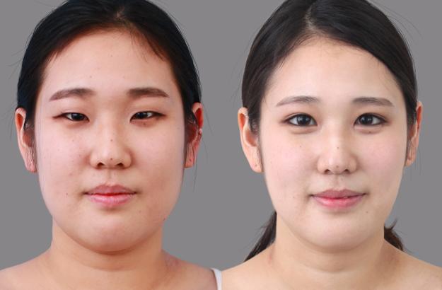 Корейская блефаропластика